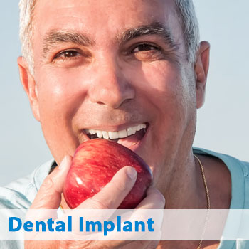Lavon dental implants